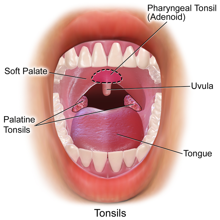 Removing Tonsils Pros and Cons